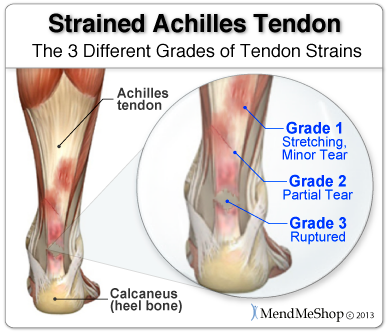 Achilles Tendon strain or sprain, which is affecting