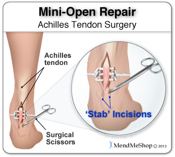 tendon release surgery recovery time