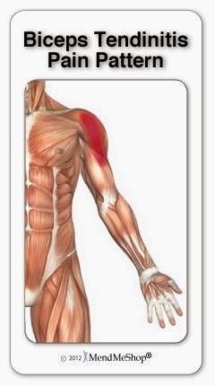 Bicipital Tendinitis Pain Pattern