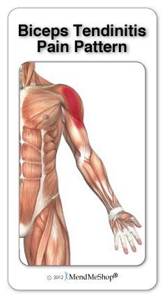 bicep tendonitis pain pattern