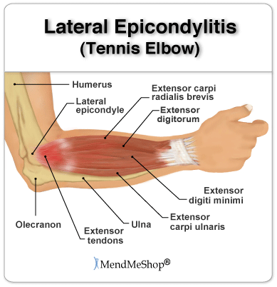 Tendinosis Tennis Elbow