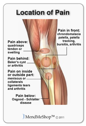knee pain location map