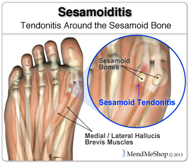 Sometimes the tendons around the sesamoid bones will become inflamed and irritated.
