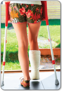 Recovery after tendon surgery will require a cast, removable brace and/or crutches.